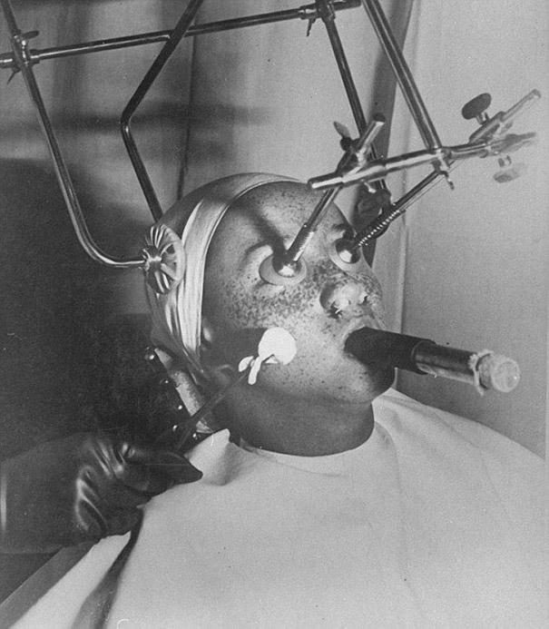 'Freezing' freckles off with carbon dioxide was a popular treatment in the thirties