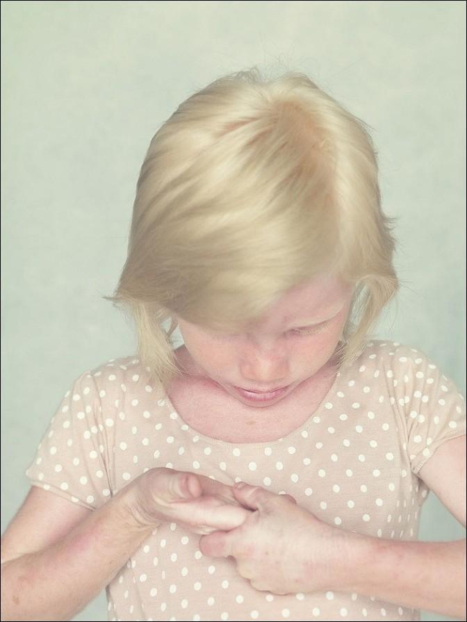 albino01 – kopie (2)