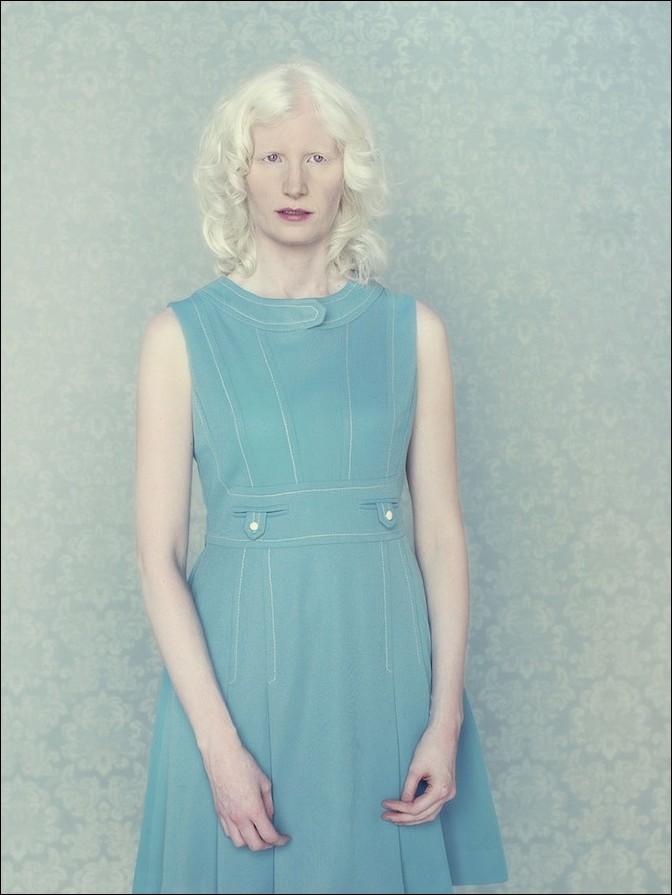albino02 – kopie (2)