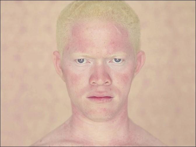 albino03 – kopie (2)