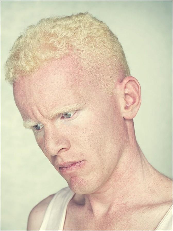 albino04 – kopie
