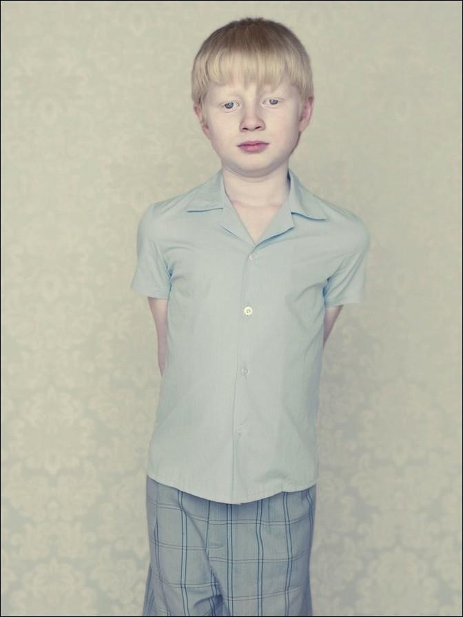 albino09 – kopie