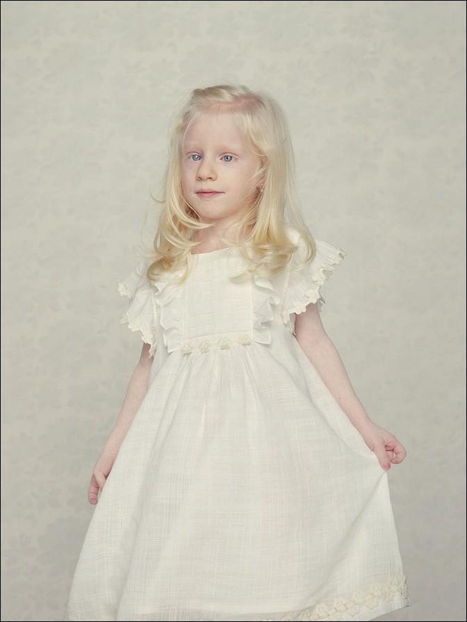 albino10 – kopie