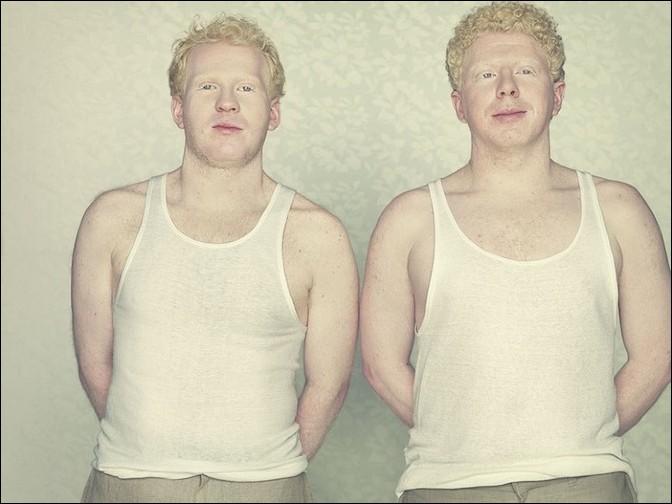 albino14 – kopie