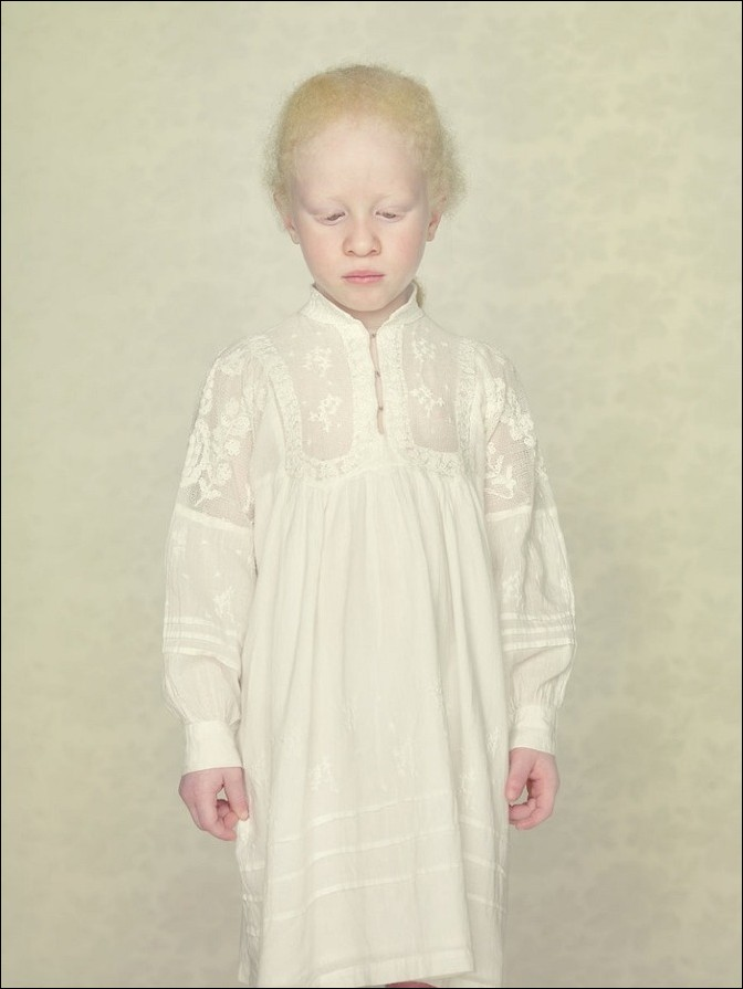 albino15 – kopie