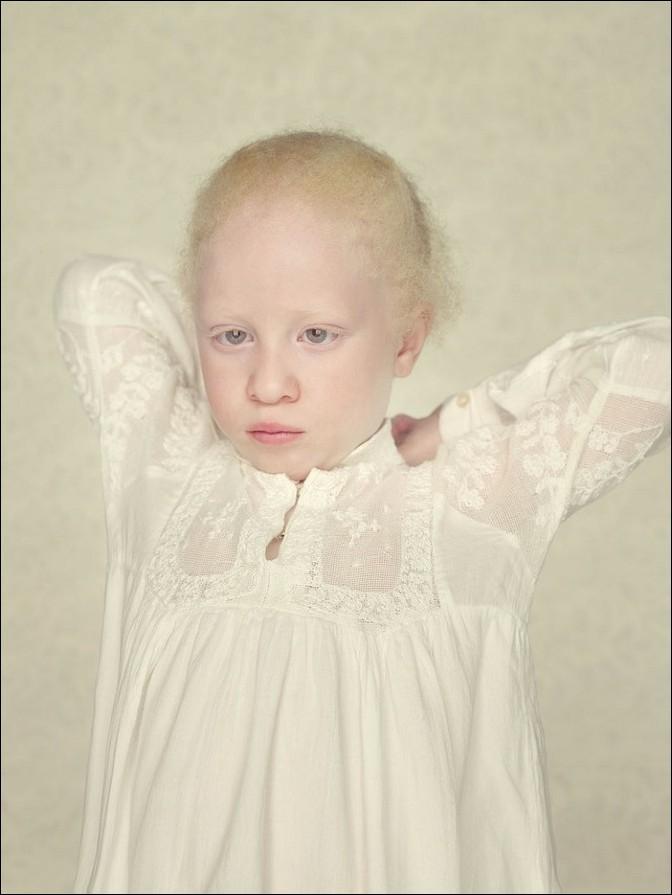 albino16 – kopie