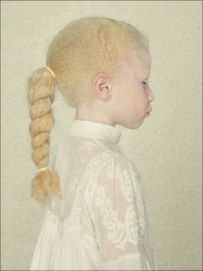 albino17 – kopie