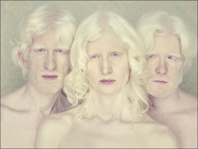 albino19 – kopie