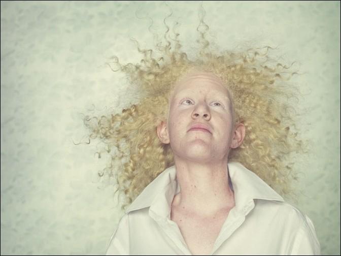 albino23