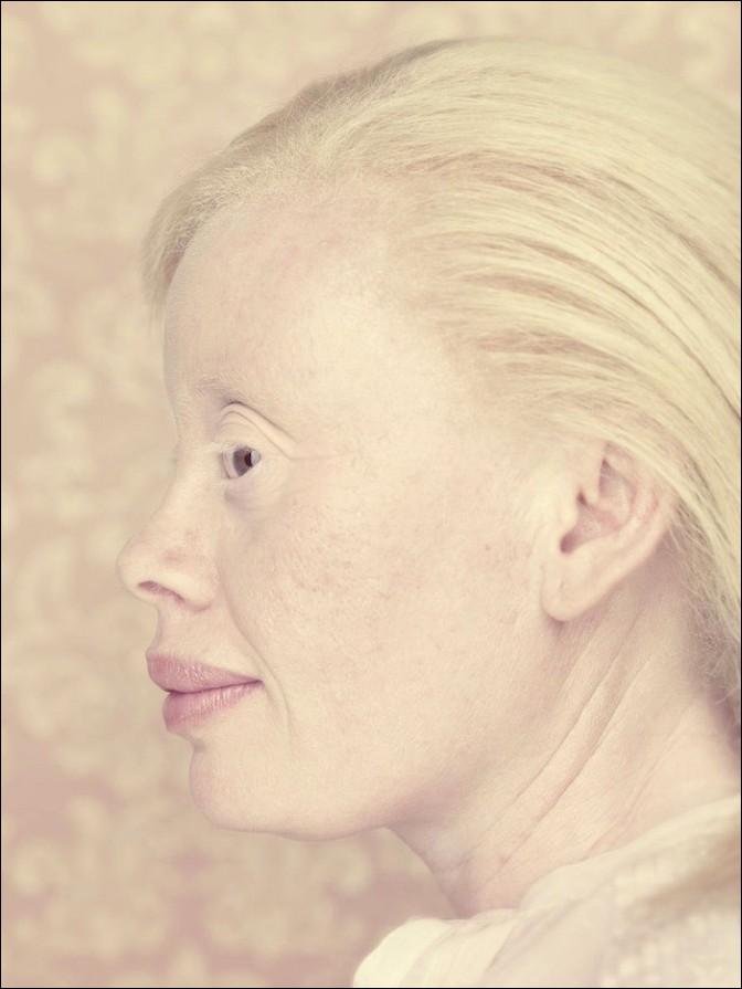 albino24