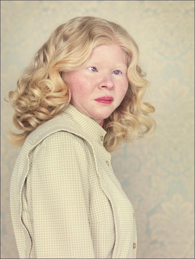 albino26