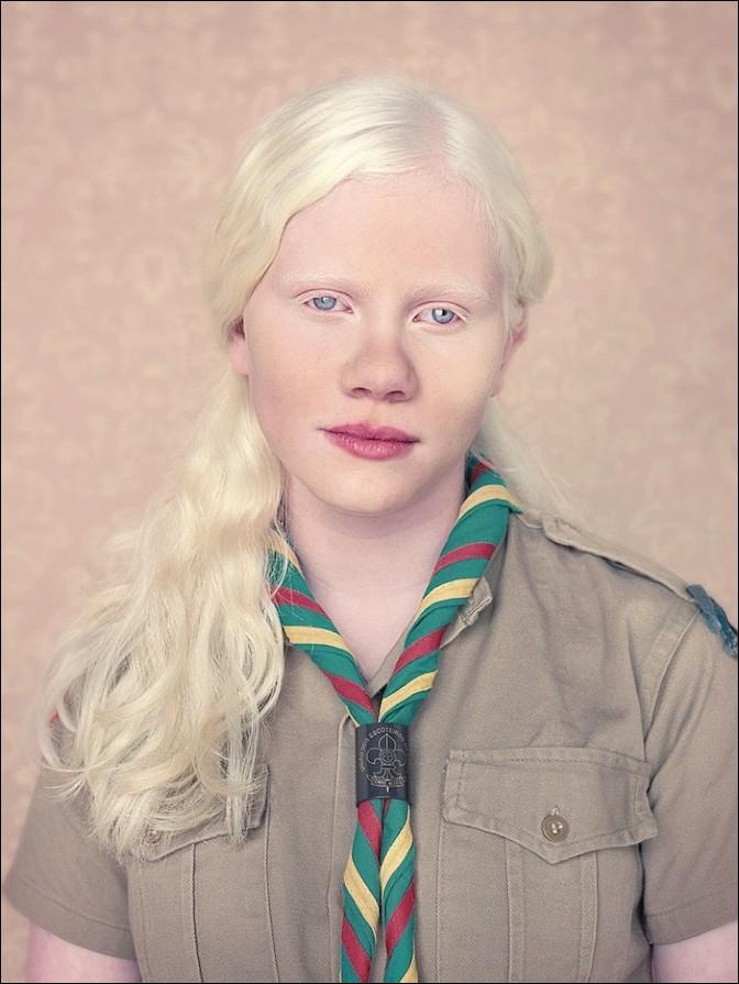 albino27