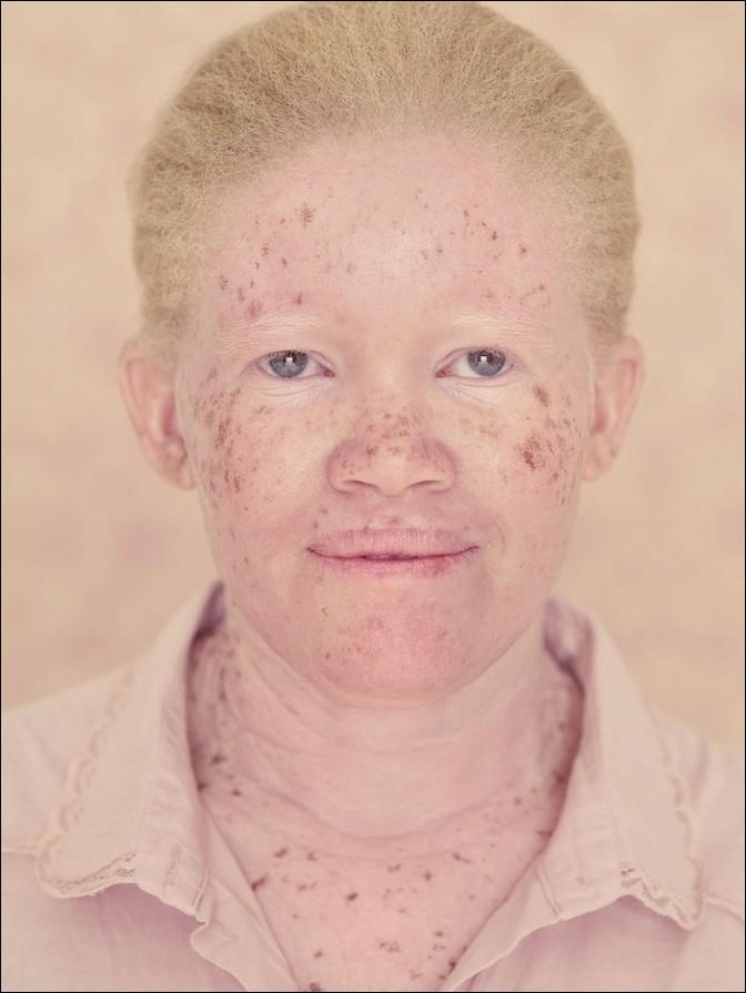 albino29
