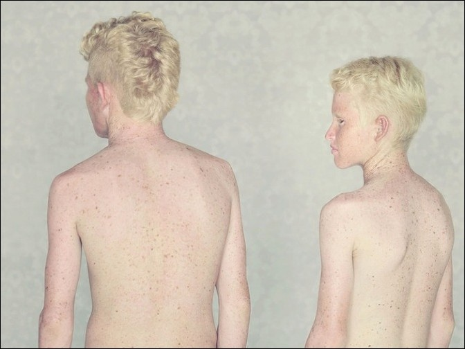 albino33