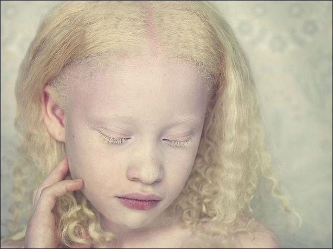 albino36