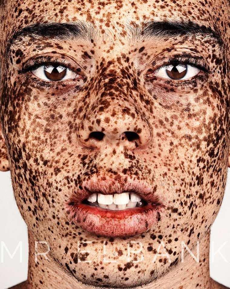 Brock-Elbank-Freckles-3