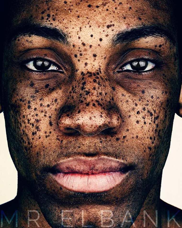 Brock-Elbank-Freckles-6
