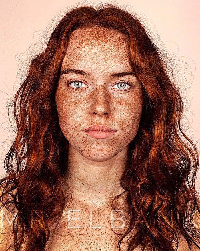Brock_Elbank_freckles_beauty2