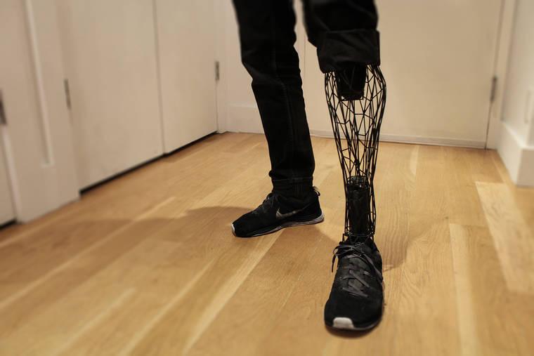 exo-prosthetic-leg-5