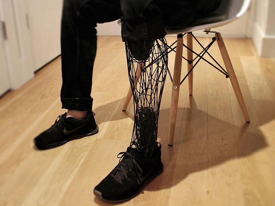 prosthetics-leg-3d-printed-titanium-william-root-4